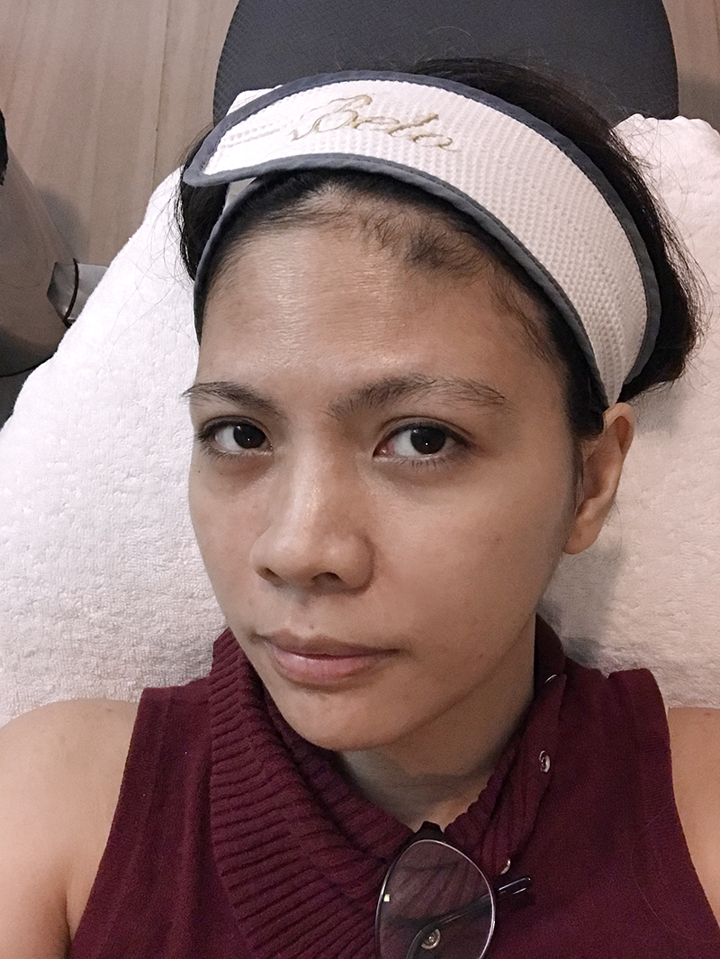 How I Got Rid of Eyebags and Dark Circles at Belo Medical