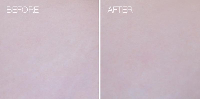 strip-white-laser-treatment-7