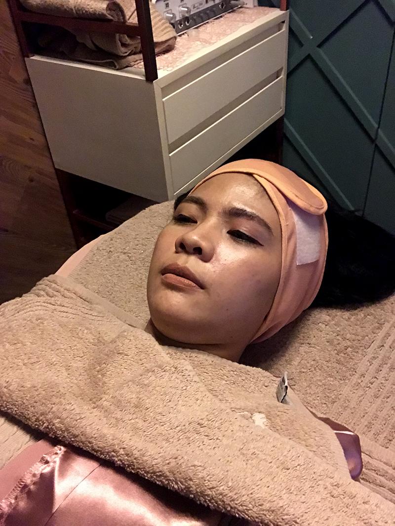 cara-laser-skincare-5